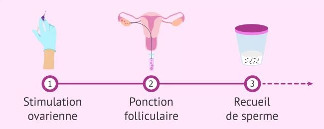 etapes de la fiv